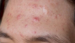 Man-with-acne-on-forhead-iStock